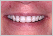 Dr. Woloch, Manhattan's premiere dental implant specialist